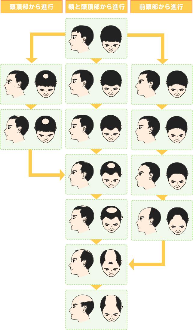 頭頂部から進行、額と頭頂部から進行、前頭部から進行