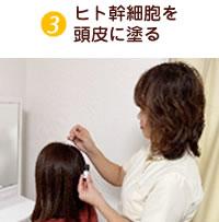 汚れた頭皮環境を洗浄・整える